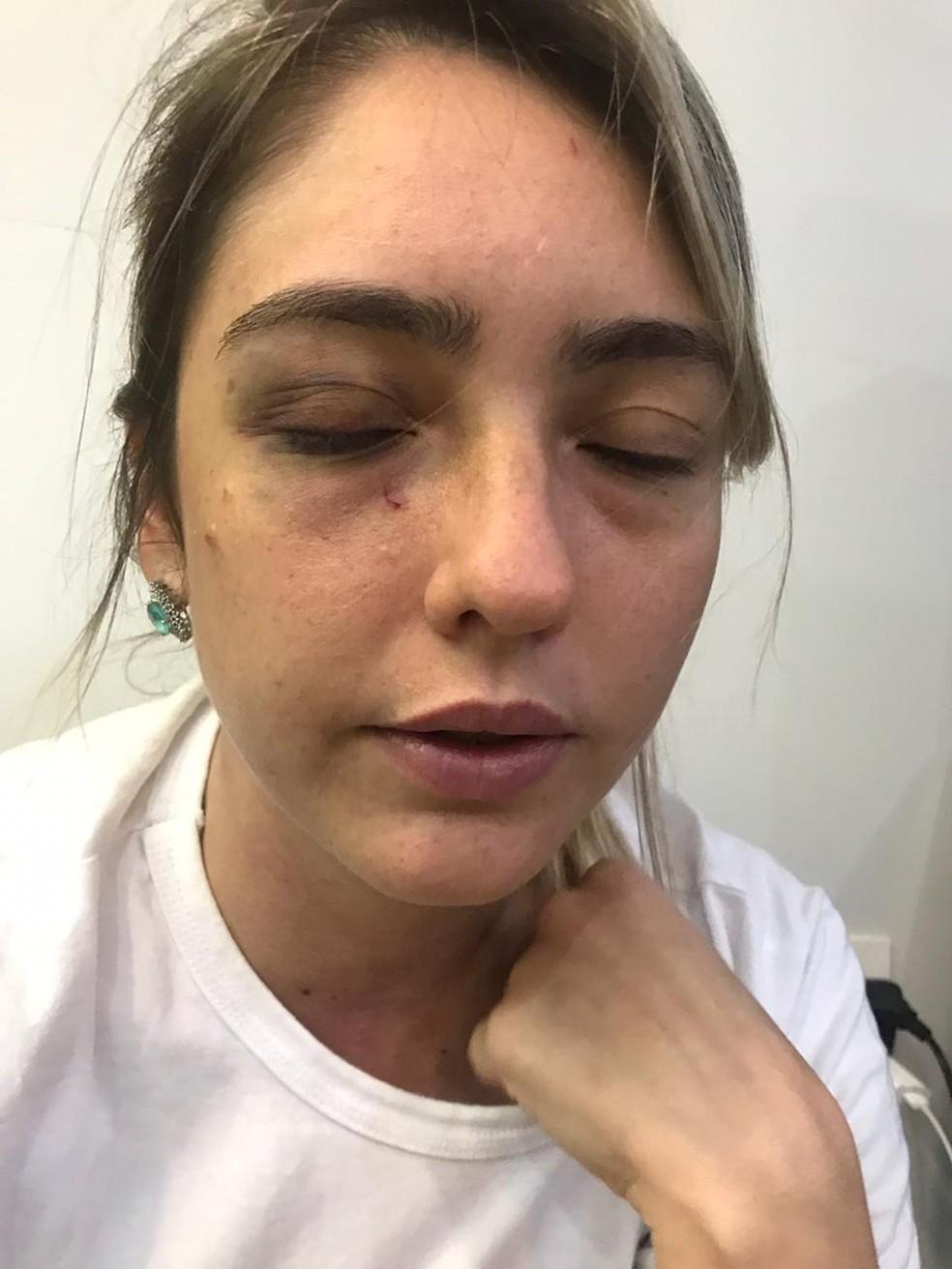 Advogada ficou com hematomas no rosto após agressões — Foto: Arquivo Pessoal