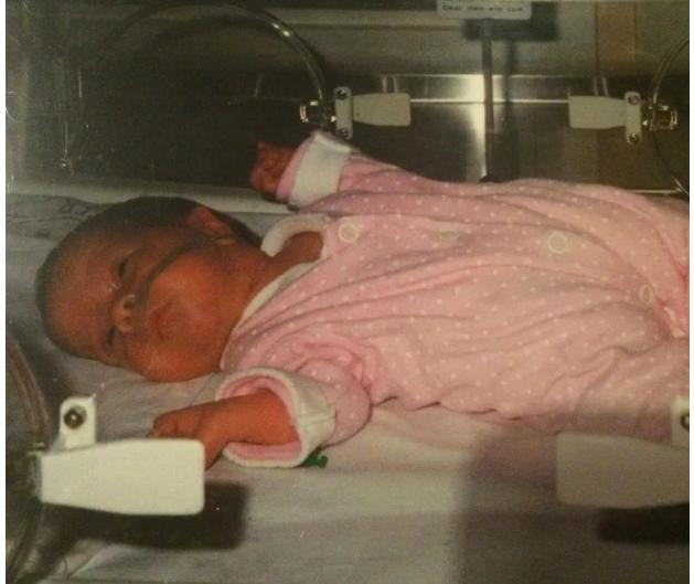 Claire nasceu com 1 quilo e 50% de chances de sobreviver (Foto: reprodução)
