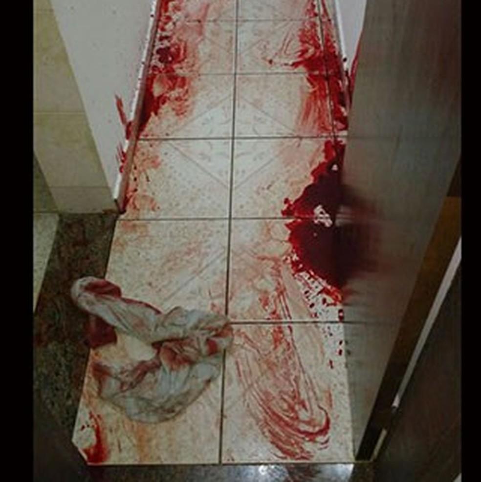 Suposto amante de mulher foi ferido por marido em motel (Foto: Jornal da Região/Divulgação )
