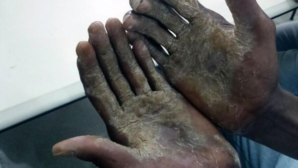 Trabalhador em regime análogo a escravidão encontrado durante operação de resgate — Foto: Divulgação/MPT