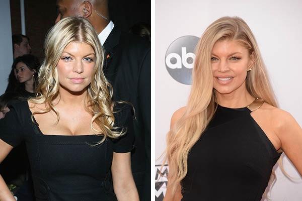 Fergie em 2007 e agora (Foto: Getty Images)