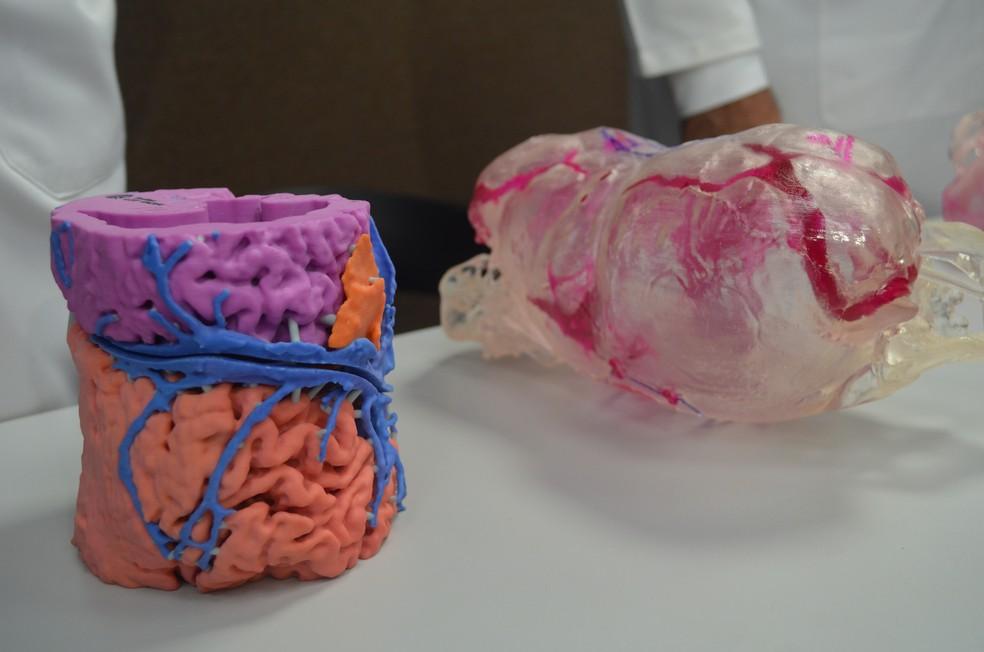 Protótipos desenvolvidos por equipe para separação de gêmeas siamesas em Ribeirão Preto (Foto: Rodolfo Tiengo/G1/Arquivo)