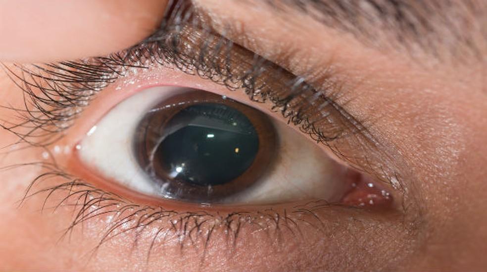 Junho Violeta conscientiza a população sobre a ceratocone e o alerta para não coçar os olhos.
