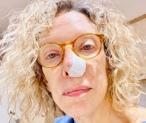 Marília Gabriela descobre câncer de pele e passa por cirurgia - Quem | QUEM  News