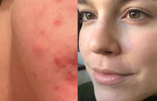 """Alice Wegmann revelou que passou por um problema hormonal em 2019 que acabou lhe deixando com muitas espinhas. A atriz publicou uma foto antes e depois do tratamento e comentou: 'Isso não pode impedir ninguém de viver a vida livremente..."""" (Foto: Reprodução/Instagram)"""