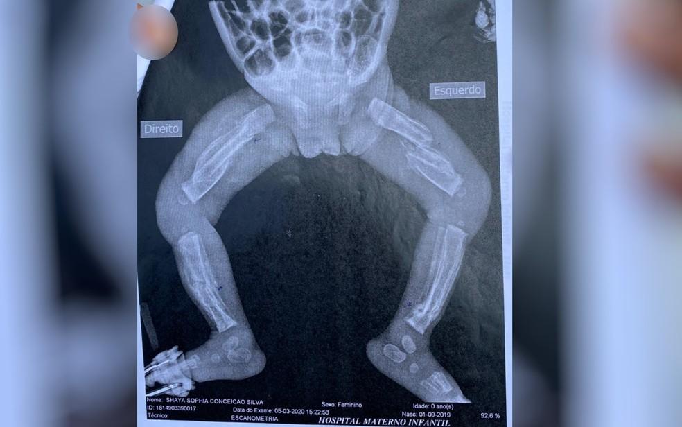 Exames de raios-x mostram múltiplas fraturas pelo corpo da bebê, em Trindade — Foto: Reprodução/TV Anhanguera