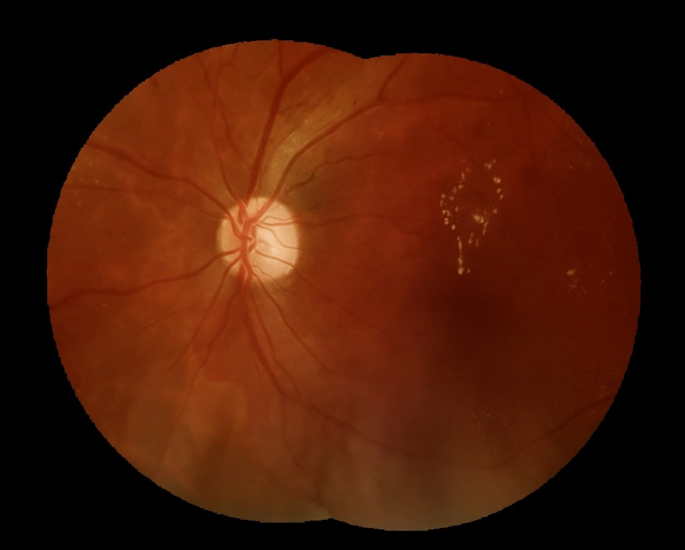 Pesquisadores da Unifesp e da USP constataram por meio de exames da retina uma alta prevalência de diabetes tipo 2 e de uma disfunção oftalmológica causada pela doença (Foto: Divulgação)