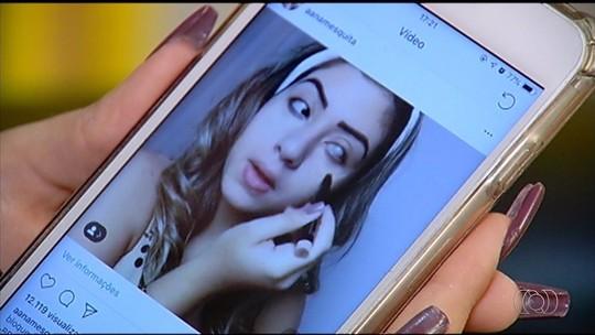 Jovem cega de um olho por glaucoma divide sua história e dá dicas de beleza nas redes sociais
