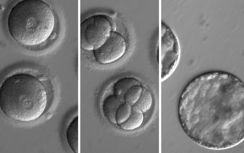 Sequência de imagens mostra o desenvolvimento de embriões após injeção de uma enzima de correção de genes e esperma de um doador com uma mutação genética conhecida por causar cardiomiopatia hipertrófica. (Foto: Nature/OHSU)