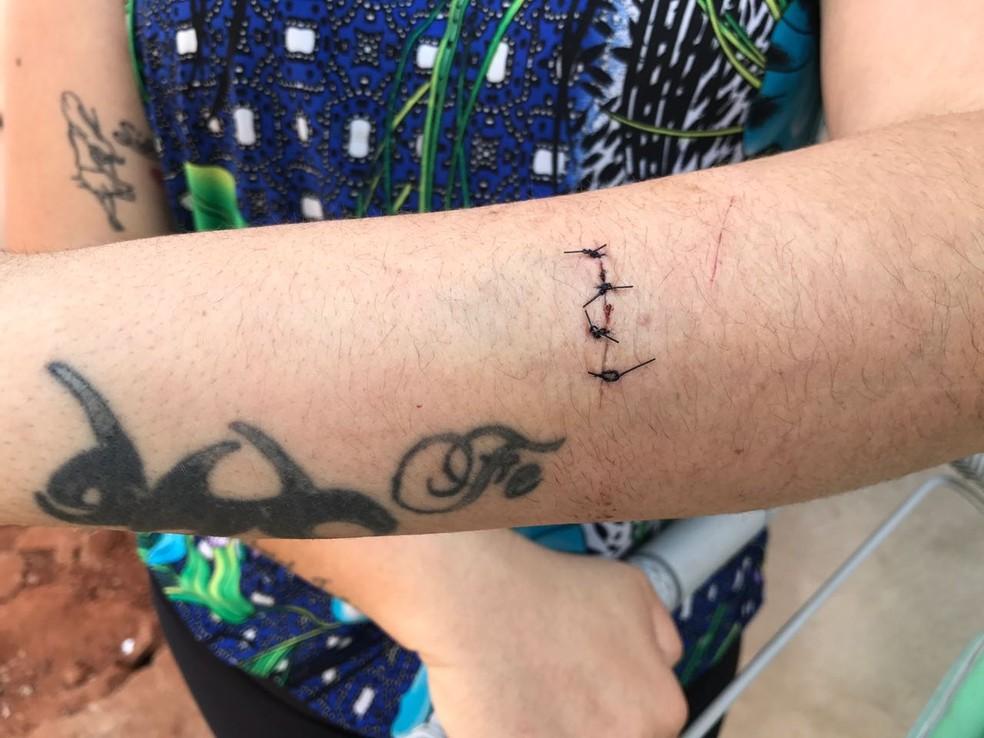 Mãe também ficou ferida na abordagem dos ladrões em Bauru  (Foto: Giuliano Tamura / TV TEM )