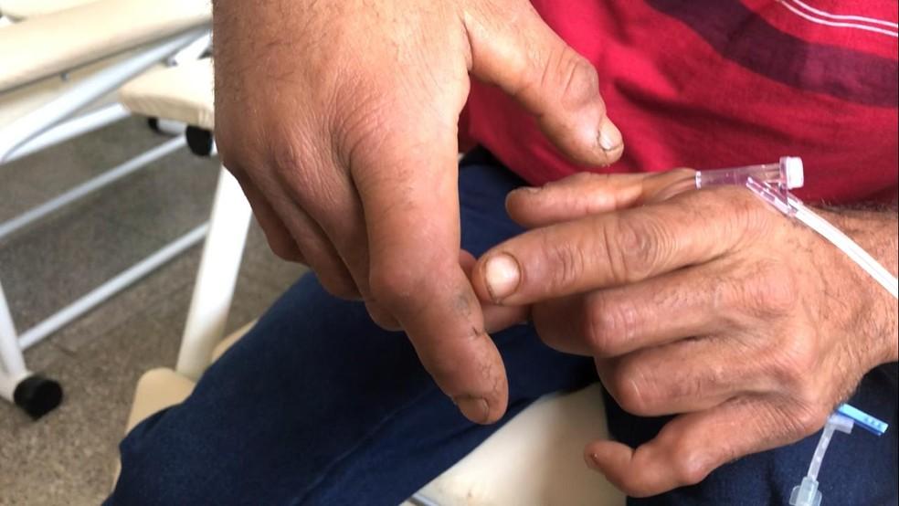 Jararaca picou chacareiro no dedo em Vilhena — Foto: Rede Amazônica