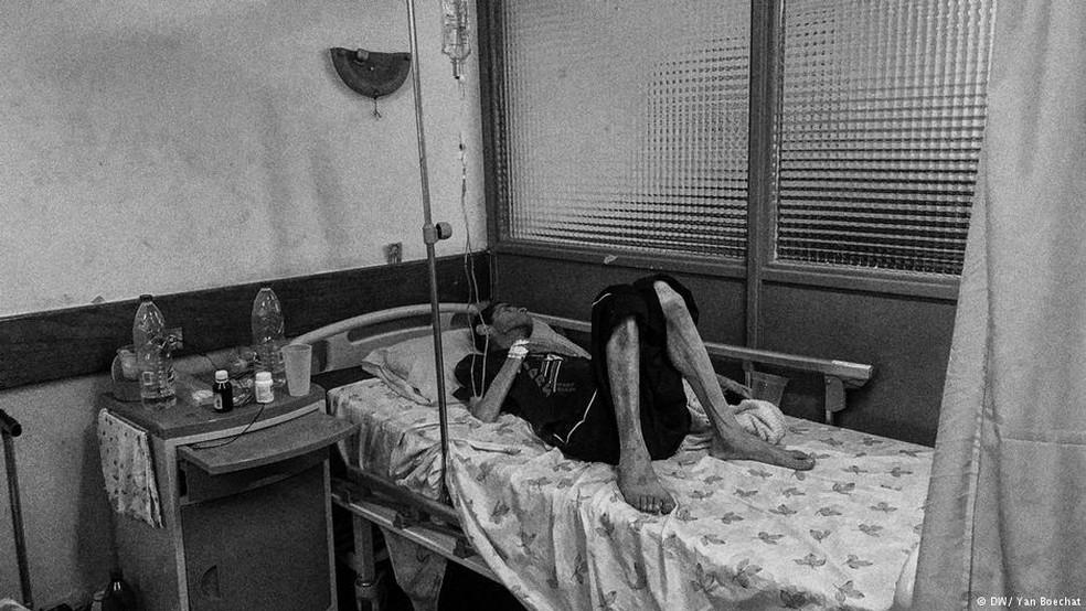 O corpo magro, o rosto cadavérico, a pele manchada: situação faz lembrar um paciente de HIV dos anos 80 (Foto: Yan Boechat/DW)