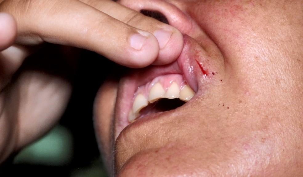 Árbitra Eliete mostra ferimento na boca — Foto: Kairo Amaral/TV Clube
