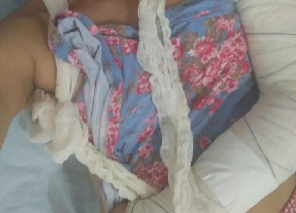 Por homofobia, mulher teve braço quebrado por adolescente em Natal  — Foto: Divulgação