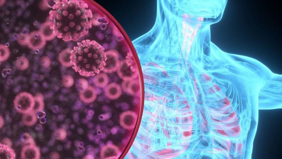 Principais alvos da Covid-19 são o pulmão e as vias respiratórias, mas vírus tem surpreendido por seu variado ataque, do cérebro aos rins — Foto: Getty Images via BBC