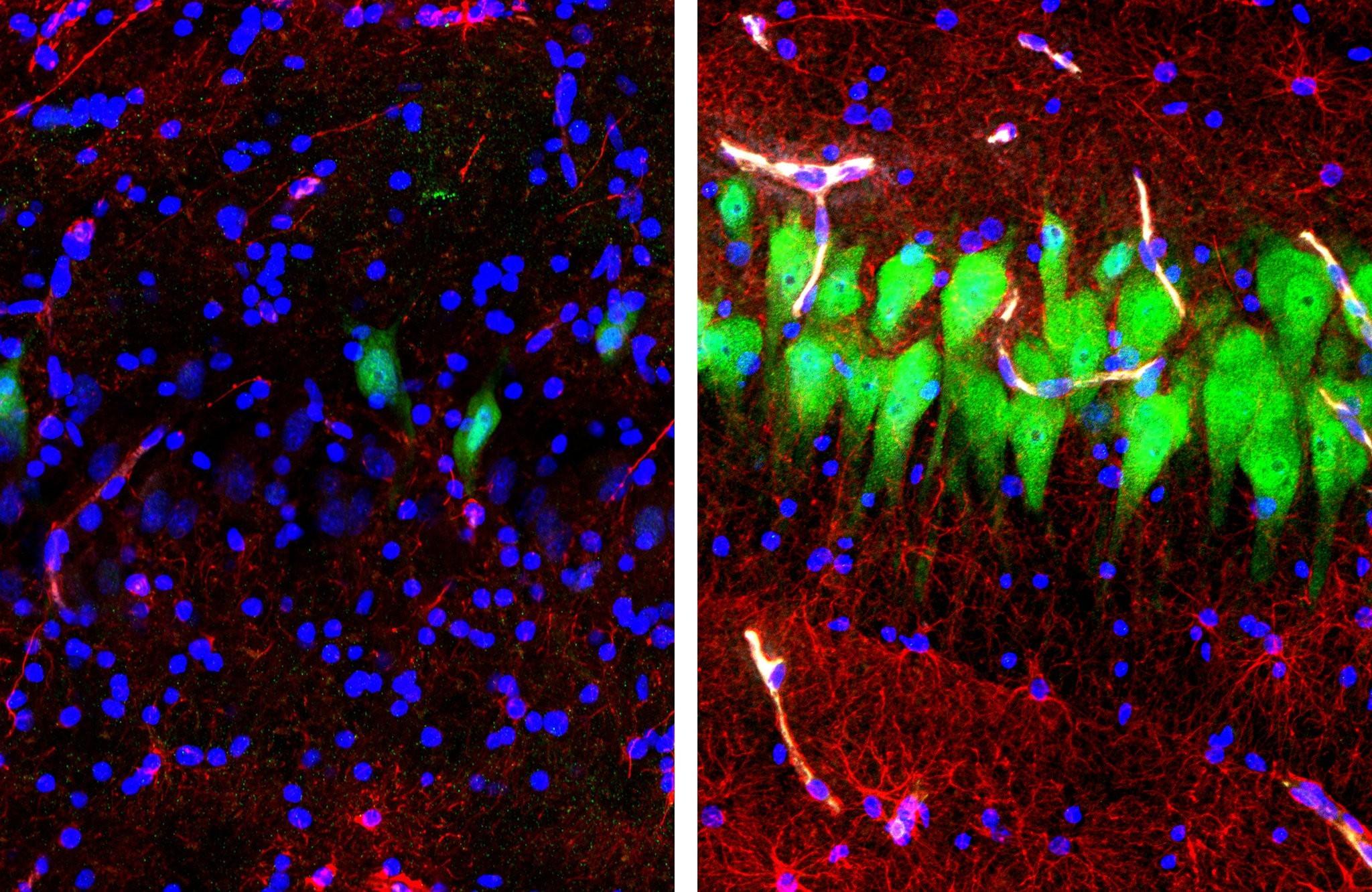Neurônios ( verde), Astrócitos (vermelho), e núcleos de células (azul) nos cérebros de porcos. Na esquerda, tecido cerebral não tratado por 10 horas após a morte; na direita, tecido cerebral sujeito ao experimento  (Foto: Escola de Medicina da Universidade de Yale)