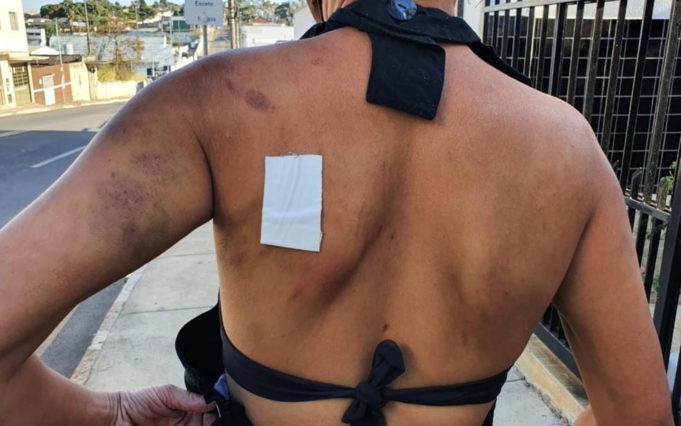 Mulher diz que ficou uma semana reclusa em casa após apanhar do marido, em Catalão  — Foto: Reprodução/TV Anhanguera