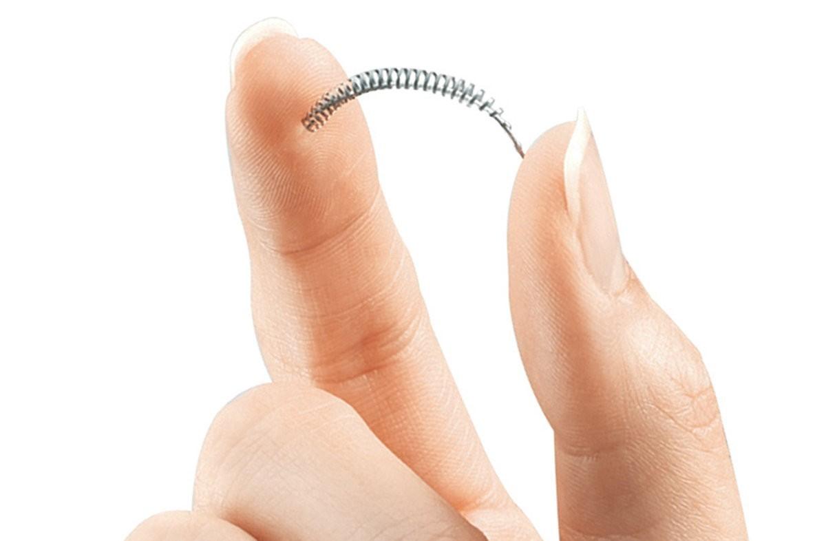 O Essure consiste em um par de molas de 4 centímetros cujo diâmetro pode se expandir de 1,5 a 2 milímetros para se fixar nas paredes das tubas uterinas (Foto: Divulgação/Bayer)