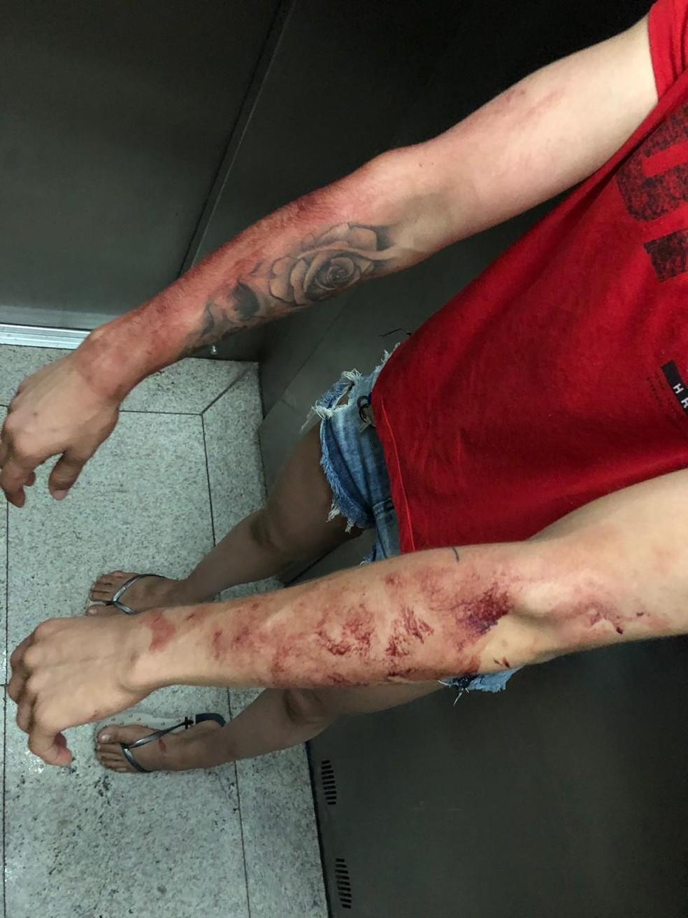 Polyana Viana mostra os braços feridos após imobilizar o assaltante — Foto: Arquivo pessoal