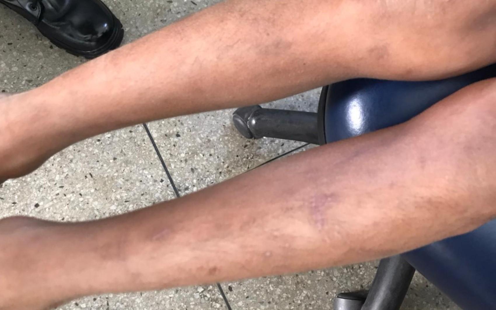 Pai de crianças que fugiram de casa e relataram agressões é solto, diz Conselho Tutelar