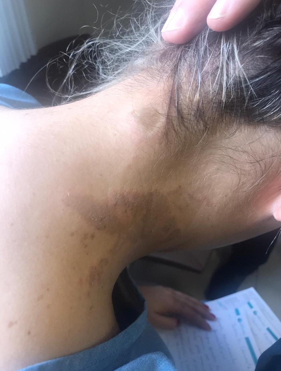 Tássia não conseguiu ver o rosto do agressor. — Foto: Arquivo pessoal