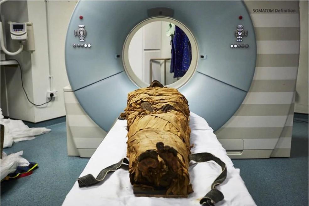 Em 2016, a múmia foi submetida a uma tomografia computadorizada em Leeds. — Foto: Leeds Teaching Hospitals/Leeds Museums and Galleries via Nature