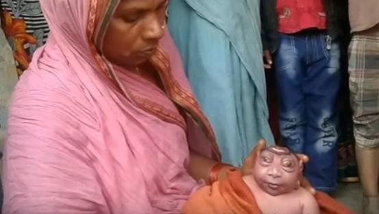 O menino nascido com deformidade e a mãe