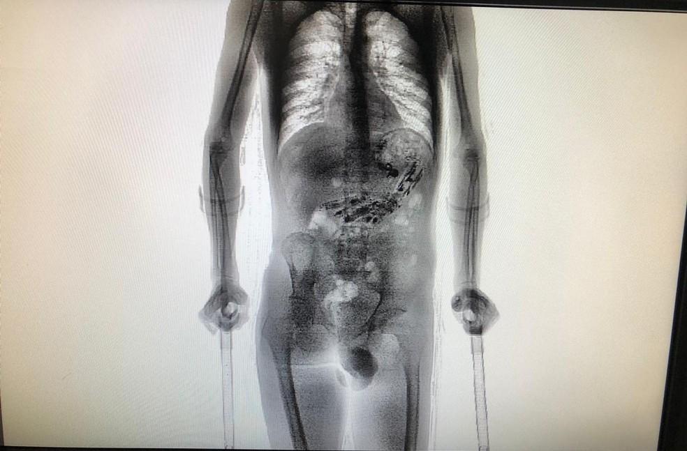 Objetos foram encontrados quando homem passou por scanner — Foto: Secretaria de Justiça e Cidadania/Divulgação