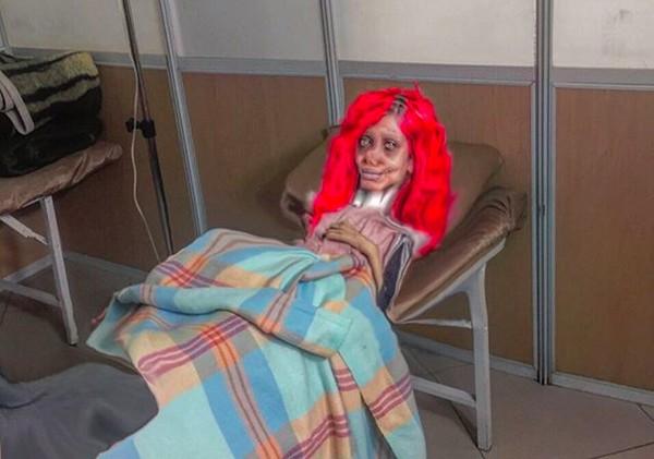 A jovem iraniana Sahar Tabar, fã de Angelina Jolie, internada em um hospital no Irã (Foto: Instagram)