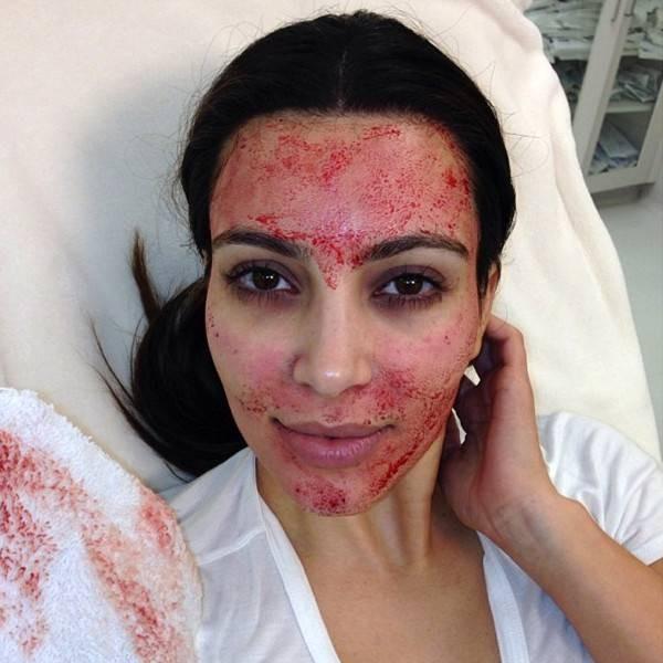 Kim Kardashian deu fama ao microagulhamento  (Foto: Reprodução/Instagram)