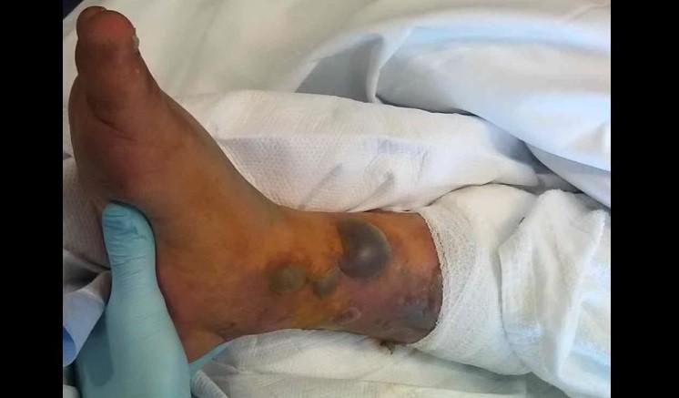 Paciente internado com infecção após tatuagem e banho de mar