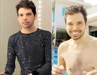 """Gustavo Mendes faz abdominoplastia após eliminar 60 kg: """"Tanquinho agora chegou"""""""