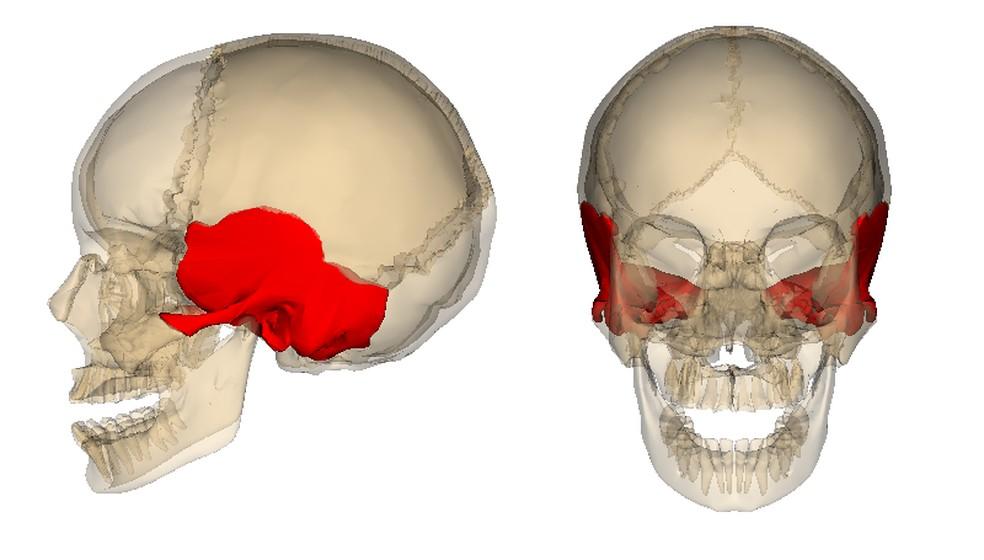 Imagem mostra onde fica o osso temporal — Foto: Reprodução/Wikipedia (Licença CC BY-SA 2.1 JP)