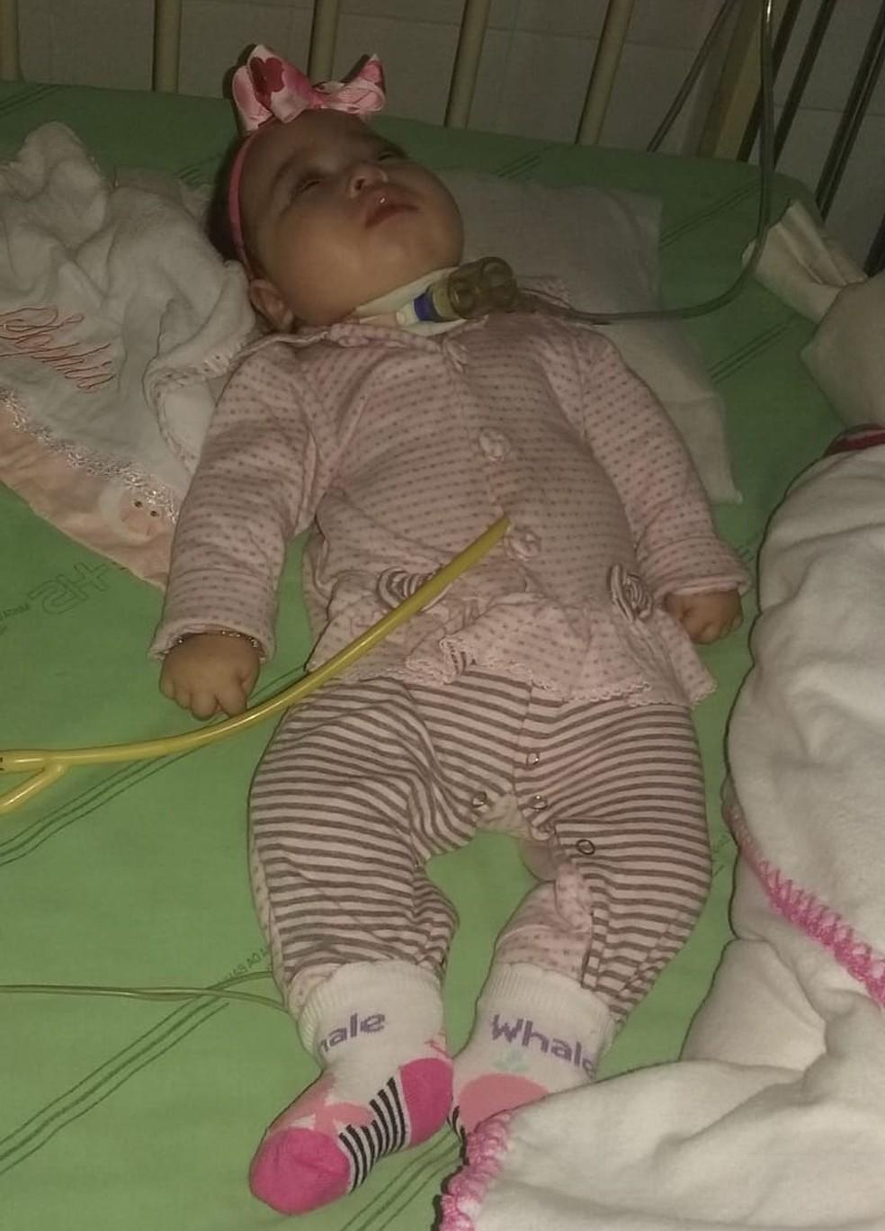 Menina já passou por dois processos cirúrgicos. (Foto: Josis Meng)