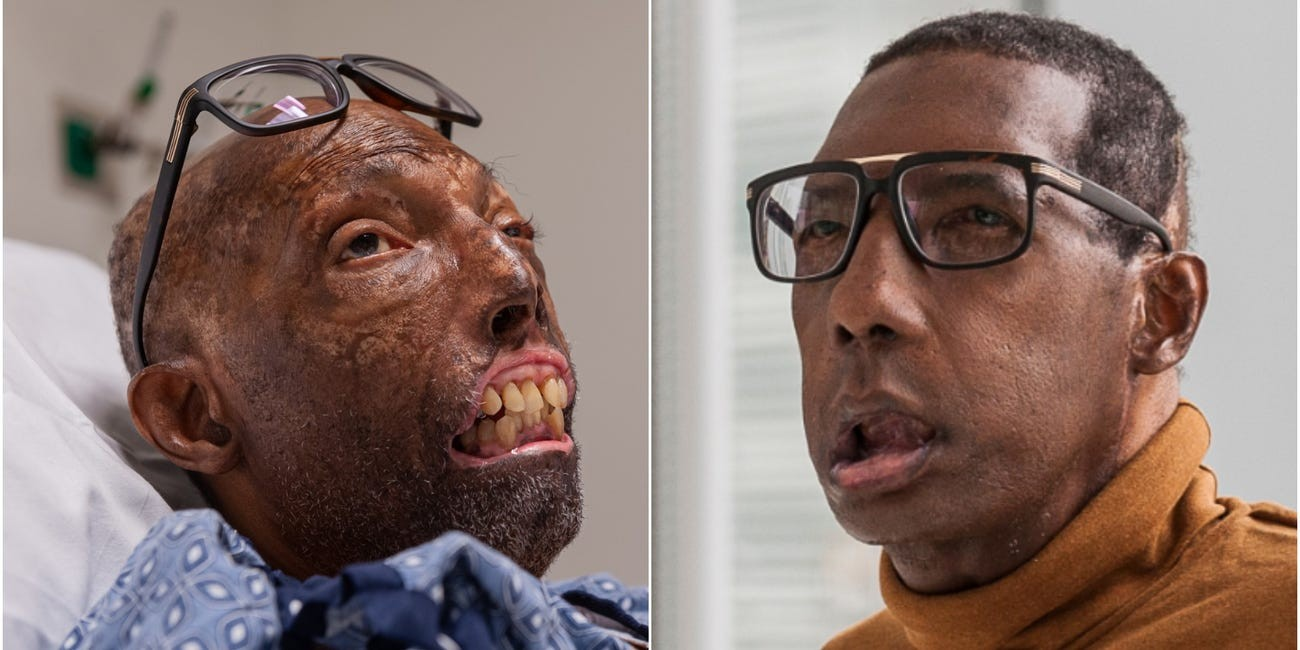 Robert Chelsea, de 68 anos, antes e depois de receber transplante facial completo (Foto: Lightchaser Photography / J. Kiely Jr./BRIGHAM AND WOMEN'S HOSPITAL)
