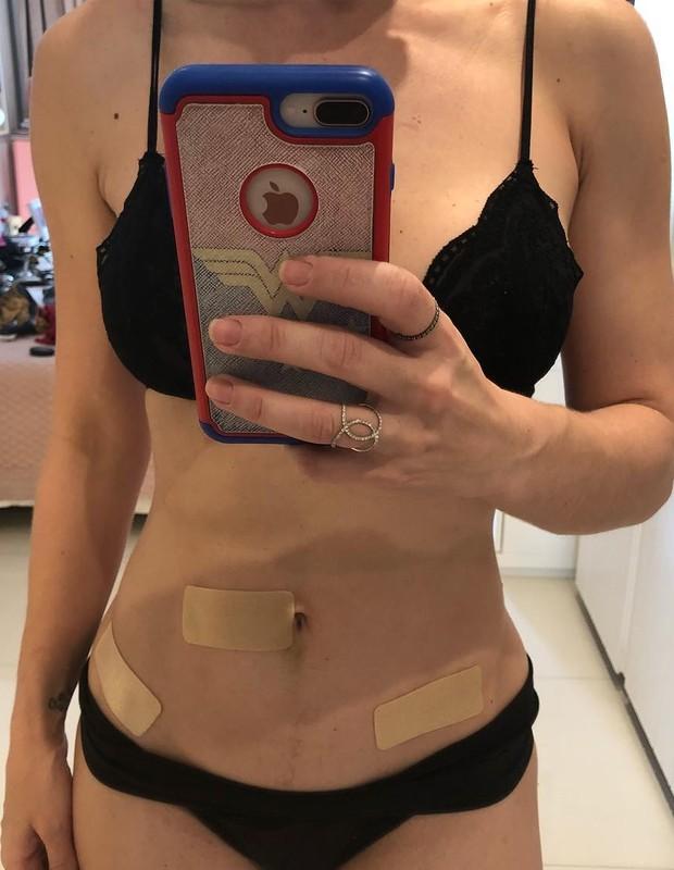 Franciely Freduzeski passa por cirurgia (Foto: Reprodução/Instagram)