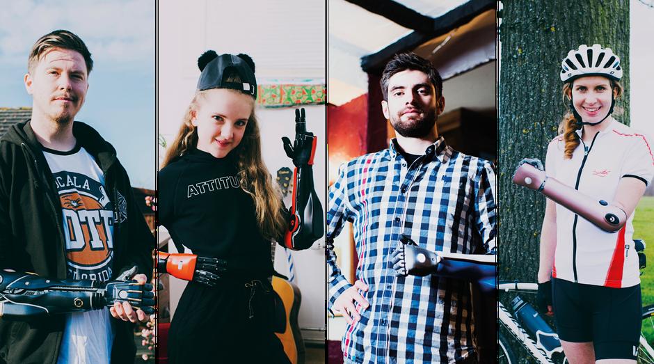 Próteses da Open Bionics, startup que quer mudar seu mercado (Foto: Divulgação)
