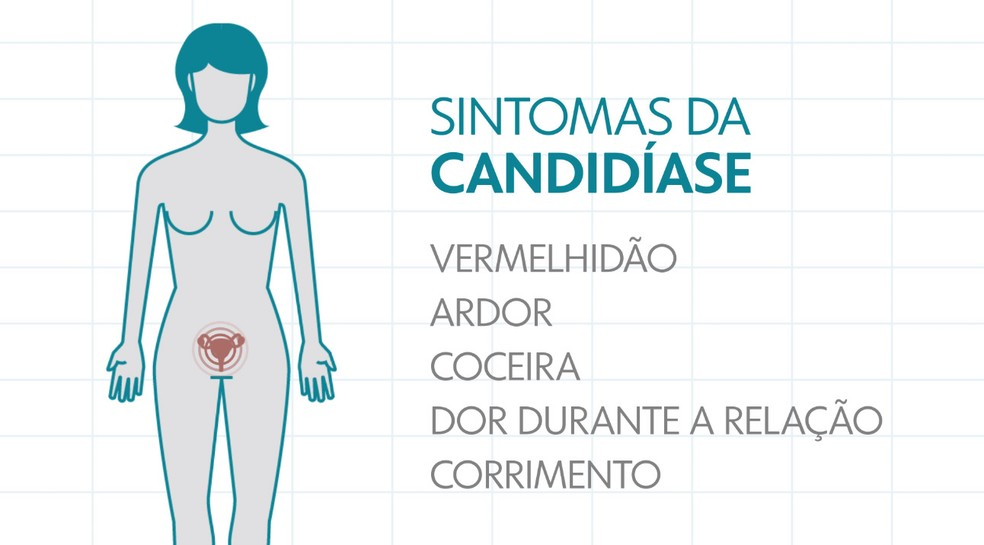 Sintomas da candidíase — Foto: Arte/TV Globo