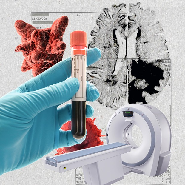 Cancer (Foto: Leonardo Megna)