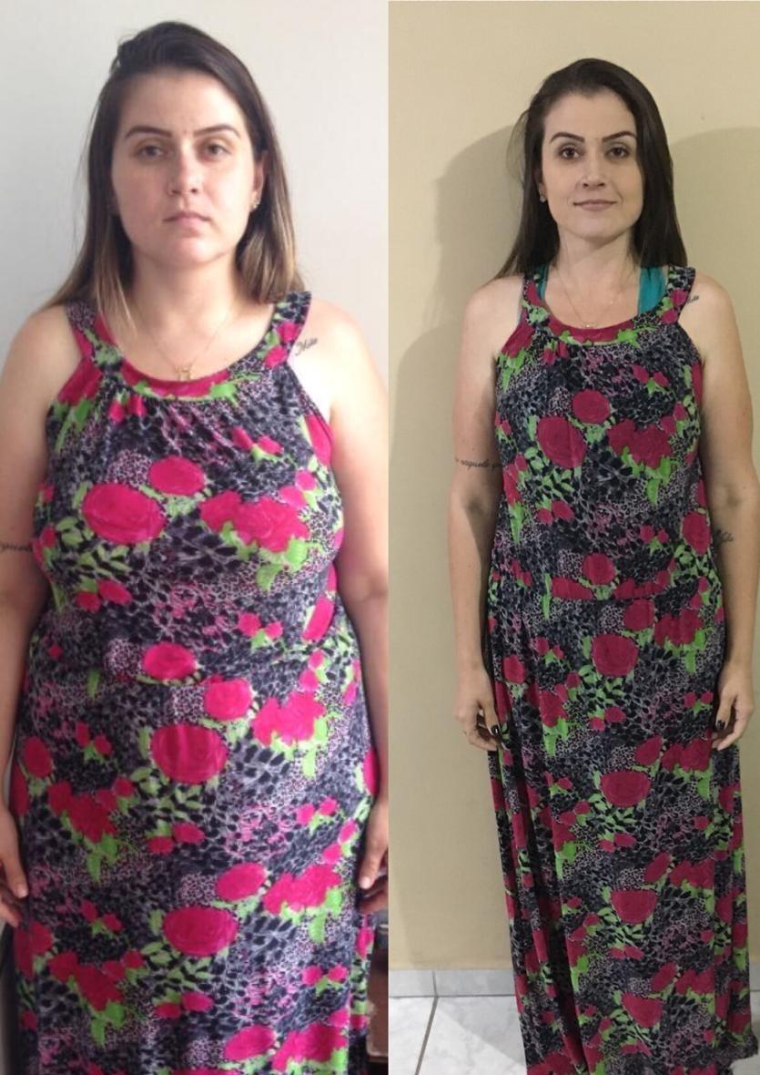 Cíntia Narlock em foto de antes e depois (Foto: arquivo pessoal)