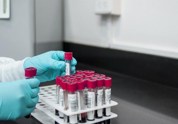 Laboratório, testes, ciência (Foto: Pixabay)