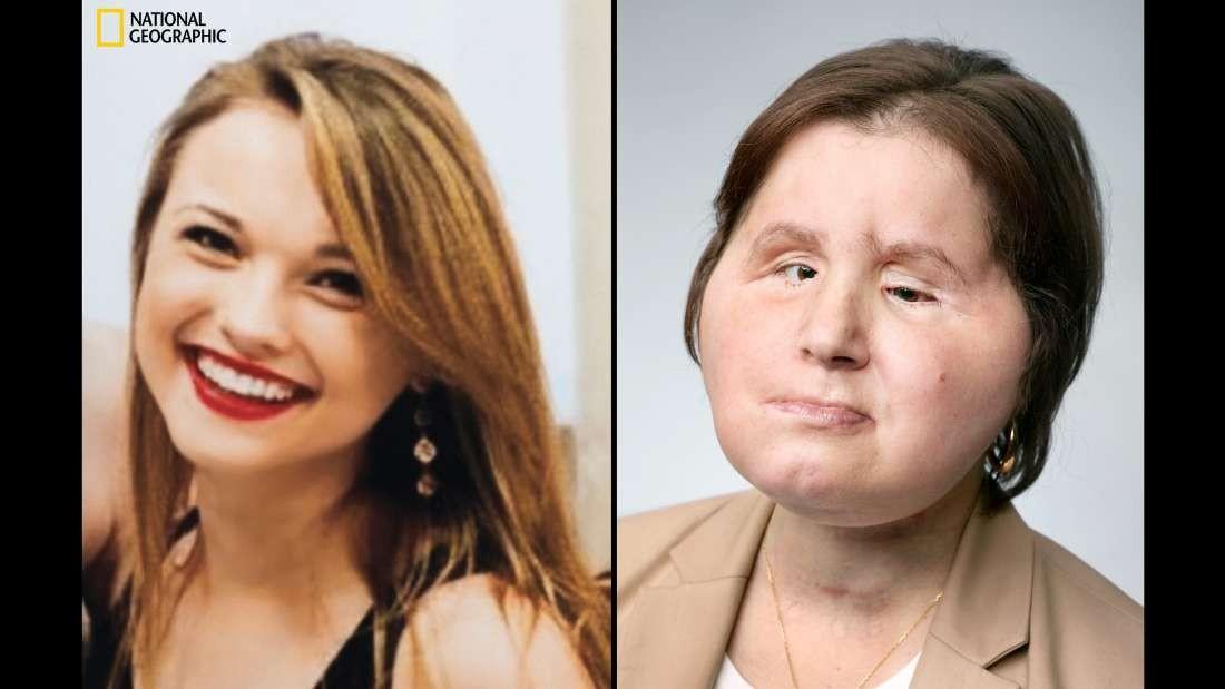 Antes e depois de Katie Stubblefield, norte-americana mais jovem a fazer transplante facial (Foto: Martinschoeller)