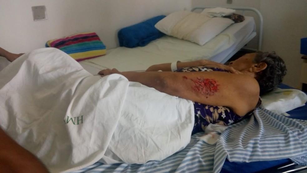 Paciente ficou com braço ferido após desabamento de teto de banheiro em hospital da Grande Natal — Foto: Cedida