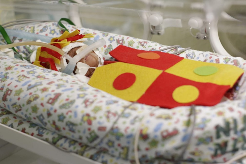 Bebê fantasiada de Emília durante ensaio fotográfico — Foto: Divulgação / Hospital Regional Tibério Nunes