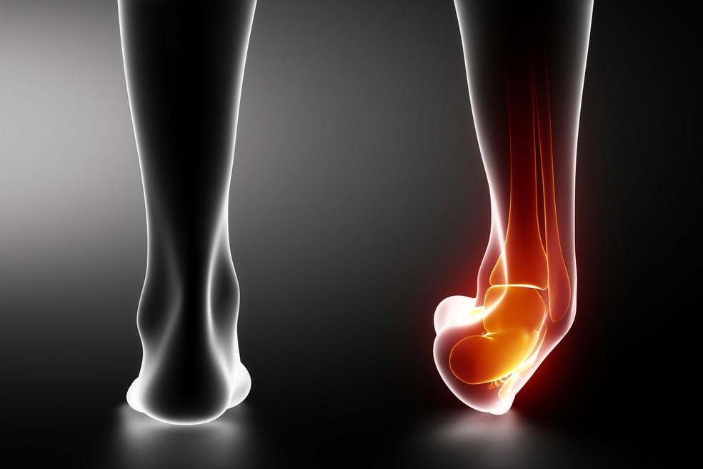 Há três graus de classificação das lesões de sindesmose no tornozelo — Foto: Istock Getty Images