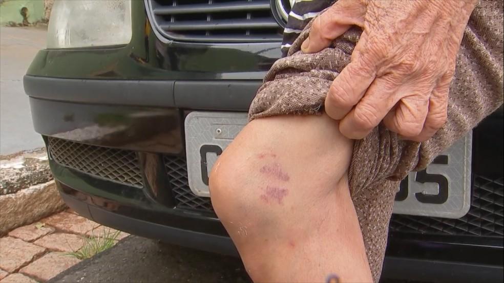 Criminosos agrediram idosa durante a ação — Foto: Reprodução/TV TEM