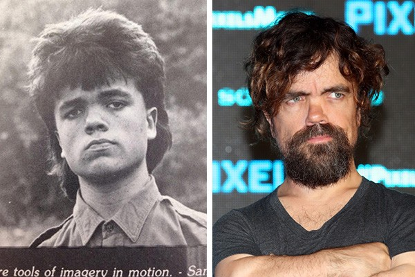 Peter Dinklage em 1987 e em 2015 (Foto: Reddit / Getty Images)