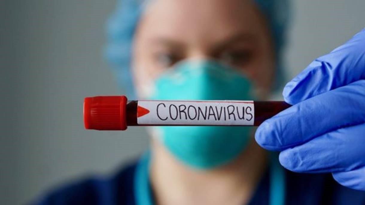 796 bolsistas passam a atuar em ações contra coronavírus no Paraná, nesta segunda-feira (30)
