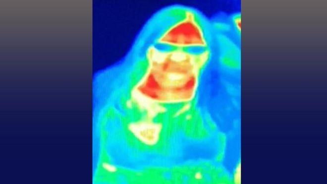 A câmera de imagem térmica mostrou que o seio de Gill tinha uma cor diferente (Foto: BAL GILL/BBC)