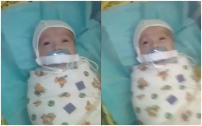 bebê com a chupeta presa na boca (Foto: Reprodução vídeo)